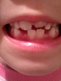 20090521tooth.jpg